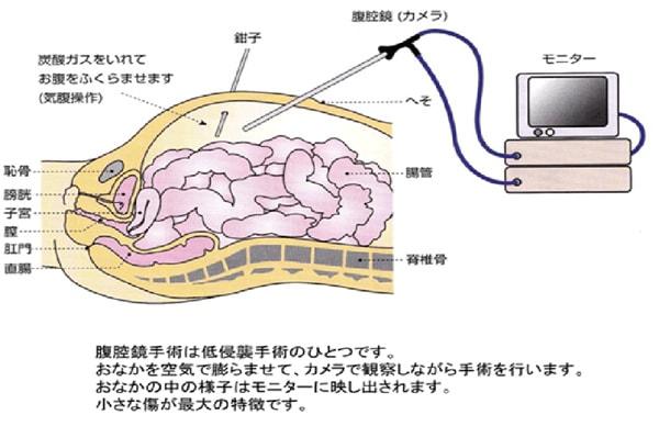治療方法(手術・大腸)について